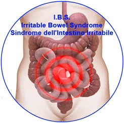 Sindrome del colon irritabile